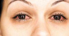 rimedi occhi rossi secchi