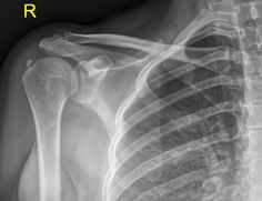 Calcific tendinitis is a self limiting condition due to deposition of calcium hydroxyapatite within tendons, usually of the rotator cuff.  Calcific deposits are usually visualised as homogeneous hyperdensity with variable morphology, but typically globular / amorphous with poor margins.  http://radiopaedia.org/articles/calcific-tendinitis