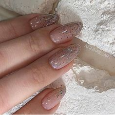 This series deals with many common and very painful conditions, which can spoil the appearance of your nails. But for you, nail technicians, this is not a problem! SPLIT NAILS What is it about ? Nails are composed of several… Continue Reading → Blue Nail, Pink Nails, Glitter Nails, White Sparkle Nails, Perfect Nails, Gorgeous Nails, Pretty Nails, Almond Acrylic Nails, Cute Acrylic Nails