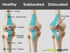 Patellar Subluxation, a patellar tracking disorder, occurs when your patella (kneecap) becomes partially dislocated. Learn about symptoms treatments here. Patella Fracture, Tibial Plateau Fracture, Bursitis Knee, Knee Taping, Kt Tape Knee, Knee Dislocation, Partial Knee Replacement, My Knee Hurts, Knee Pain Exercises