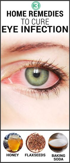 3 Effective Home Remedies To Cure Eye Infection