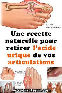 Une recette naturelle pour retirer l'acide urique de vos articulations#recettesanté #recettenaturelle #acideurique #articulations #santé