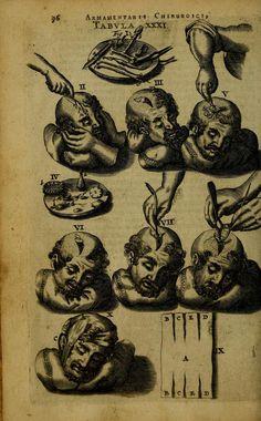 Armamentarium Chirurgium by Johannes Scultetus, 1656 (https://www.pinterest.com/pin/287386019949686299/). Tabula XXXI.