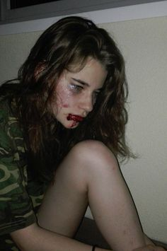 Aesthetic girl bruised  photo
