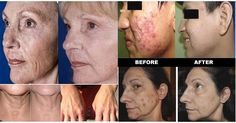 LUMINESCE™ The Secret To A Younger Healthier Looking Skin!