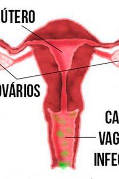 Vaginose bacteriana é a doença mais comum do trato vaginal – conheça os sintomas