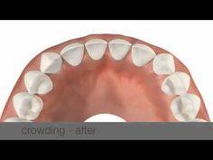MTM No Trace Braces lingual braces
