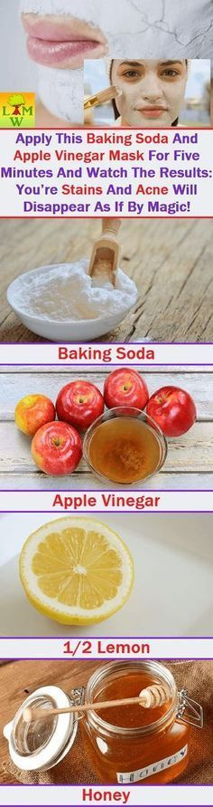 Homemade Face mask. Apply Baking soda and apple vinegar for 5 minutes and watch the result. Your satins and acne will disappear as if by magic