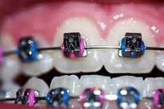In a modern world most of the people are suffers with dental problems especially jaw and if you are looking for the best solution to your problems then dental brace like blue braces is the best cho… Types Of Braces, Braces Tips, Dental Braces, Teeth Braces, Pink Braces, Braces Color Wheel, Cute Braces Colors, Getting Braces, Brace Face
