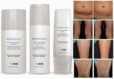 A5 Farmacia: Skinceuticals Body Correct, funciona