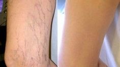 Cicatrizes ocorrer devido à interrupção da continuidade da pele, como resultado de cirurgia, queimaduras ou feridas. Algumas pessoas não se importam cicatrizes, enquanto