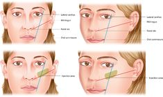Figure 4 from Midface injectable fillers: have they replaced midface surgery? Dermal Fillers, Face Fillers, Botox Fillers, Botox Injection Sites, Botox Injections, Plastic And Reconstructive Surgery, Plastic Surgery, Endoscopic Brow Lift, Botox Face
