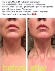 """Loose skin? Here's just ONE of the incredible things the FasciaBlaster® can do!  This is another AMAZING work of art by Chelsey at """"A-Game Massage Studio"""" in Idaho! If you're in the area look her up for a treatment! ➡ Look up my video """"How the FasciaBlaster® makes skin tighter and beautiful"""" on Youtube - I explain how the #FasciaBlaster® helps carry the blood supply to the skin which carries the necessary proteins to tighten and brighten skin! AshleyBlackSystems.com/products"""