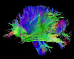 Radical Theory of How Networks Become Conscious - Wired Science