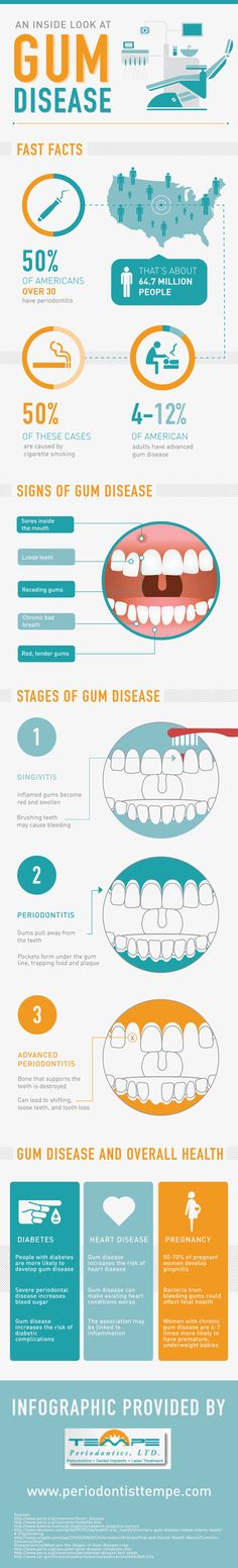 Gum disease has been shown to increase the risk of heart disease. If you want to read about the health effects of gum disease, take a look at this infographic from a dentist in Tempe. Oral Health, Dental Health, Health Tips, Public Health, Dental Hygiene, Dental Care, Dental Posters, English Grammar, Health