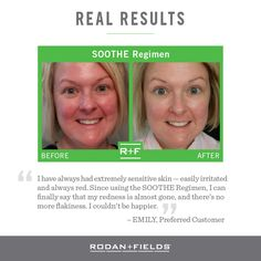 "Who else struggles with red, blotchy skin? Well this weeks #TransformationTuesday is for you! Check out the real results that were experienced with the Soothe Regimen. Just like the name says, it is formulated to soothe those with hyper-sensitive complexions. If you are ready to say ""SEE YA"" to the redness, contact me today!"
