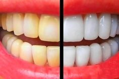 Natural Teeth Whitening Remedies Most of us recognize with seeing a range of teeth whitening products in the store, and might even know which dentists are the least pricey for specific teeth whitening treatments. Best Teeth Whitening Kit, Teeth Whitening Remedies, Teeth Whitening System, Natural Teeth Whitening, Teeth Care, Simple Life Hacks, White Teeth, Tips Belleza, Natural Home Remedies