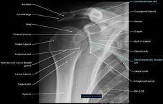 anatomy of radiograph of upper limb Muscle Anatomy, Body Anatomy, Shoulder Anatomy, Radiology Student, Radiologic Technology, Nuclear Medicine, Shoulder Joint, Human Anatomy And Physiology, Medical Anatomy