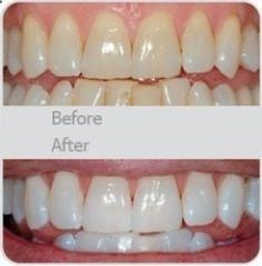 Another pinene said, Wedding-day white teeth! My dentist actually told me about this. Use a little toothpaste, mix in one teaspoon baking soda plus one teaspoon of hydrogen peroxide, half a teaspoon water. Thoroughly mix then brush your teeth for two minutes. Remember to do it once a week until you have reached the results you want. Once your teeth are good and white, limit yourself to using the whitening treatment once every month or two.