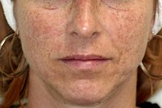 Effects of Weather on Skin - Sunspots