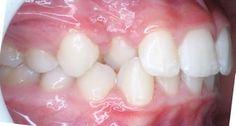SDB Studio Dentistico Balestro: Morso crociato laterale
