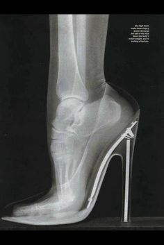 Radiografía de una mujer llevando tacón alto...
