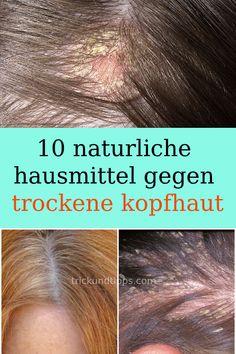 10 natural home remedies for dry scalp .- 10 naturliche hausmittel gegen trockene kopfhaut 10 natural home remedies for dry scalp # Remedies remedies - Scalp Psoriasis Shampoo, Dry Scalp Remedy, Psoriasis Cream, Dandruff Remedy, Psoriasis Remedies, Psoriasis Arthritis, Doterra, Hair Loss Treatment, Natural Life