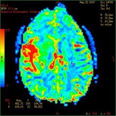 Migraines cause permanent brain damage plus smoothie recipe