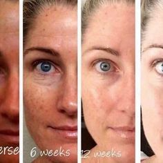 Here is what consistency looks like...meet Kara a Rodan  Fields Consultant these are her personal before and after photos using REVERSE regimen:  Before  After 6 weeks  After 12 weeks  After almost 2 years!! Message me to start transforming your skin today!#rodanandfields #sundamage #beautifulskin #antiaging #rfroadto1 by audrayoshimura