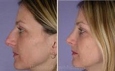 Visit our site http://nosejobcost.org for more information on Nose Jobs Before And After.Nose Job Cost differs according to which sort of Rhinoplasty you would want your specialist to carry out. While this kind of cosmetic surgical procedure is among the most usual and prominent, the Nose Job Cost could still differ from client to client.