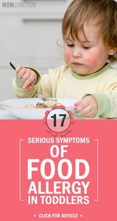 17 Serious Symptoms Of Food Allergy In Toddlers: Here are some of the milder symptoms of food allergy that you may see in your toddler.