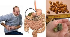 Powerful Chinese Secret To Remove Gallstones In Just 7 Days Gallbladder Attack, How To Squeeze Lemons, Dog Food Recipes, Healthy Living, Chinese, Fitness, Medicine, Diet, Juice