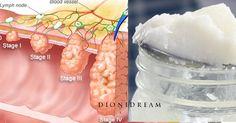 Scienziati scoprono che l'Olio di Cocco elimina il 93% del cancro al colon in 2 giorni