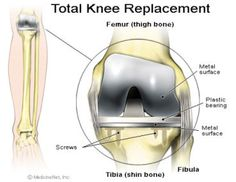 Unilateral Knee and Hip Replacement Packages in India | Orthopedic Surgery