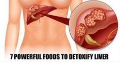 7 Powerful Foods To Detoxify Your Liver, Reverse Fatty Liver And Liver Disease