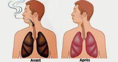 Astuces solutions remèdes pour nettoyer les poumons de la nicotine et des goudrons pour arrêter le tabac, arrêter de fumer la cigarette, éviter les maladies.