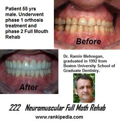 Learn more about Dr. Ramin Mehregan, Please review his Rankipedia profile here: http://www.rankipedia.com/dentist/dentistprofile/Dr-Ramin-Mehregan-Dr-Canton-Ma/02021/id/125815