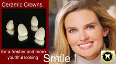 Achieve Good looking #smile!! #Ceramiccrowns improves your #oralhealth http://goo.gl/Ki3Kjg