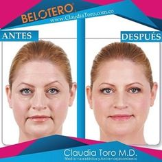 Claudia Toro MD | Estéticas, Medicina estética Bogotá Medicine