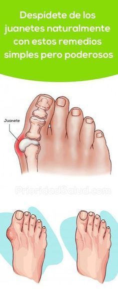 A Simple But Powerful Natural Remedy To Get Rid Of Bunions - naturall diet team Herbal Remedies, Home Remedies, Natural Remedies, Get Rid Of Bunions, Natural Medicine, Cool Eyes, Healthy Tips, Good To Know, Body Care
