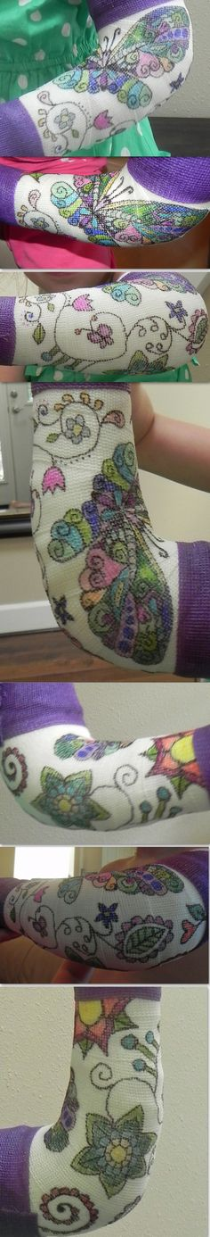 Decorated with colors and drawings. Arm cast for her first broken bone! I couldn't help but take advantage of a 25 pack of color sharpie markers to draw her requests: butterflies and flowers