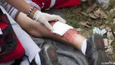 Skills to Learn for First Aid in a World Gone Mad