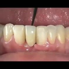 Maryland Bridge is also known as Susie Bond Bridge. Dental Facts, Dental Humor, Dental Teeth, Dental Care, Dental Surgery, Dental Implants, Dental Videos, Dental Aesthetics, Dental World