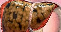 Medical diagnosis of fatty liver implies you're not living a healthy life: you take in a great deal of junk food and beverages. Cleanse your liver utilizing these 2 beverages! Health And Beauty, Health And Wellness, Health Fitness, Doctor Shows, Cleanse Your Liver, Alcohol Detox, Nutrition, Naturopathy, Fatty Liver