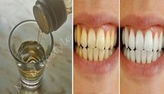 Whiten Your Teeth Instantly Using Only 1 Natural Ingredient! Health And Fitness Tips, Health Tips, White Teeth, Tips Belleza, Health Matters, Teeth Cleaning, Dental Care, Face And Body, Whitening