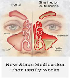 New Sinus Medication That Really Works