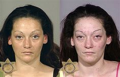 Methamphetamines user. Left image taken in 2007 and right image taken in 2008. Drugs to Mugs : shocking before and after images put together by the Multnomah County Sheriff's Office in the US state of Oregon show the cost drug addiction takes on the human face  Methamphetamine user in 2007 and 2008