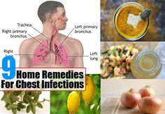 Stuffy Nose Remedies Remedies For Chest Infections - Chest infections are infections in the lungs or the air passageway between the lungs and the throat and can be very painful and cause constant coughing. The bacteria induced disease can become life… Chest Congestion Remedies, Congestion Relief, Asthma Relief, Flu Remedies, Chest Infection Remedies, Health Remedies, Natural Headache Remedies, Natural Home Remedies