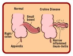 Crohn's Disease: What You Need To Know. #Crohn's