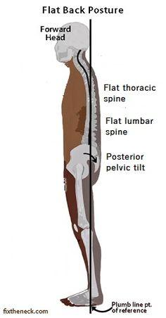 How to fix Flat back posture - Posture Direct